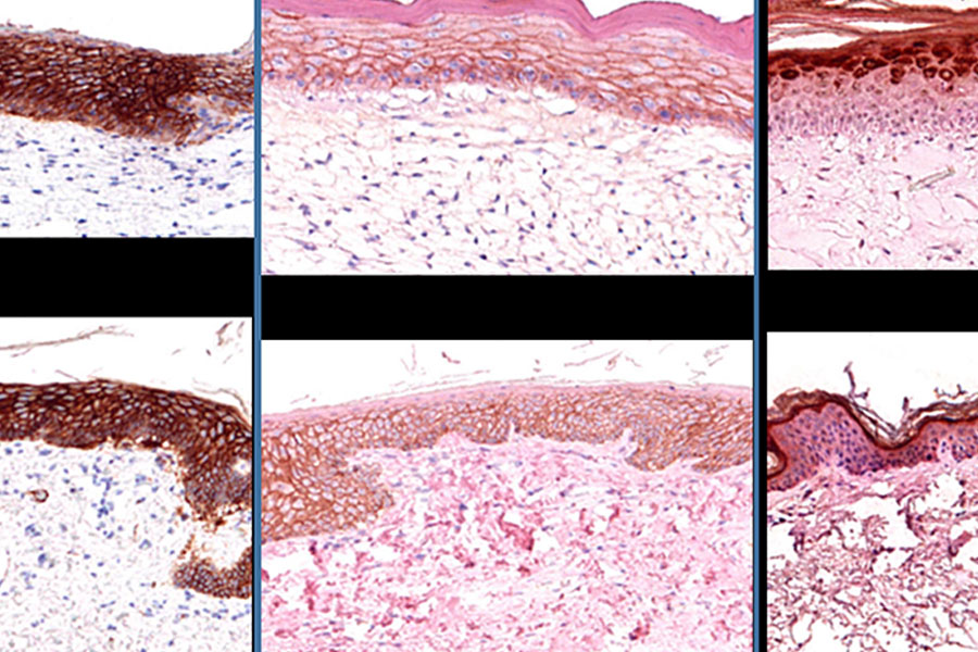 Histology is the gold standard to determine the architecture of tissues.   These panels showing histological images of 3-D Bioprinted skin (top row) and native skin (bottom row) staining for different markers relevant to skin cells and extracellular matrix composition. Image by Paige Derr and Kristy Derr, NCATS.