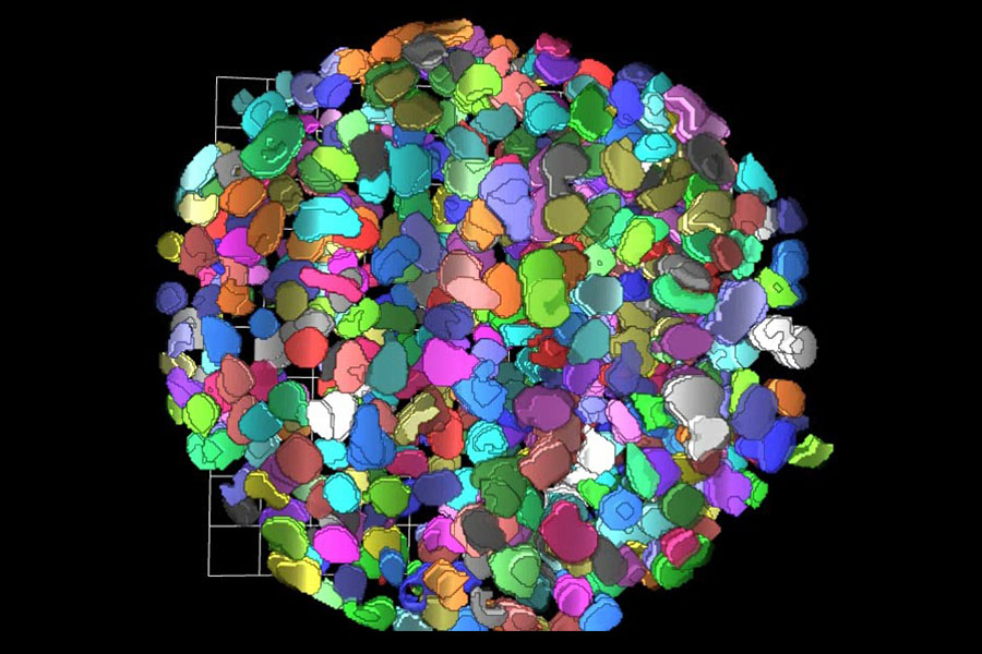 Computed 3-D rendition of a the cells in a tumor sphere model after applying a clearing protocol that enables measurements of fluorescence signal from cell nuclei stained with a fluorescent dye, deep inside the tissues.