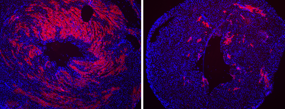 Treatment with a compound prevents heart damage in a mouse with muscular dystrophy.
