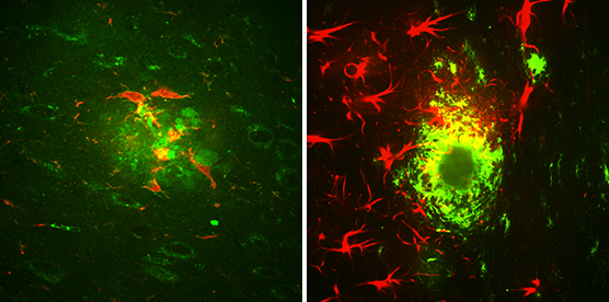 Microglia and astrocytes surround amyloid beta clusters located in the brain of a mouse.