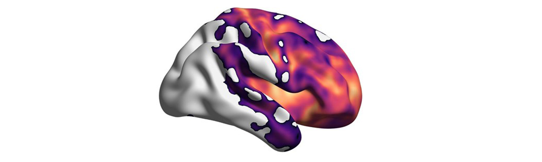 Brain damage represented in neurodegenerative brain disease.