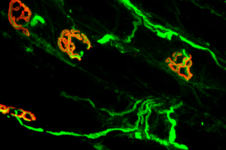 Motor nerves send signals to muscles at neuromuscular junctions.