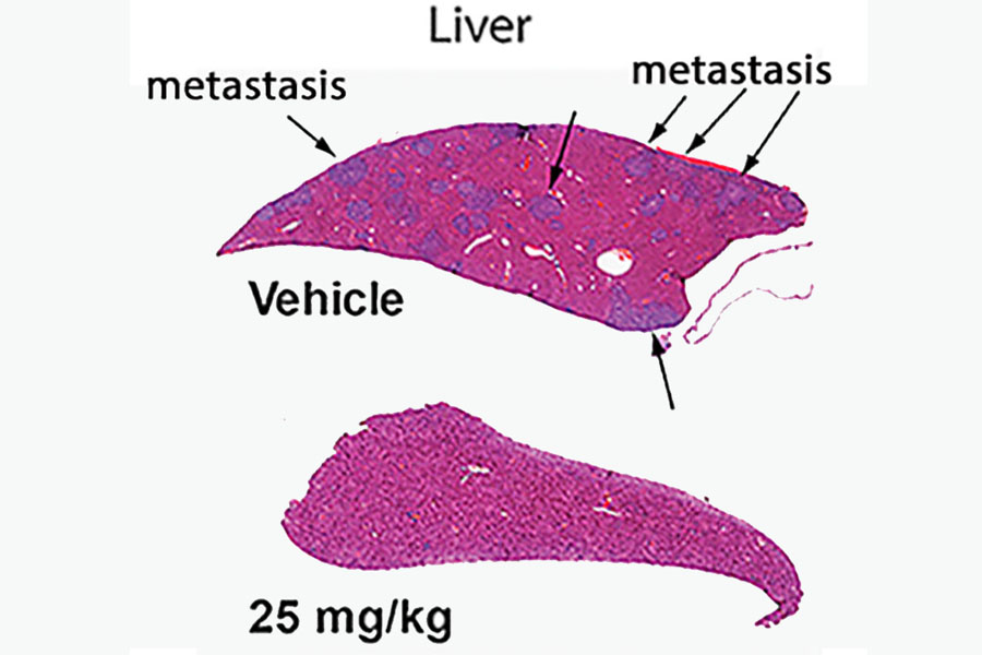 Liver cancer metastasis