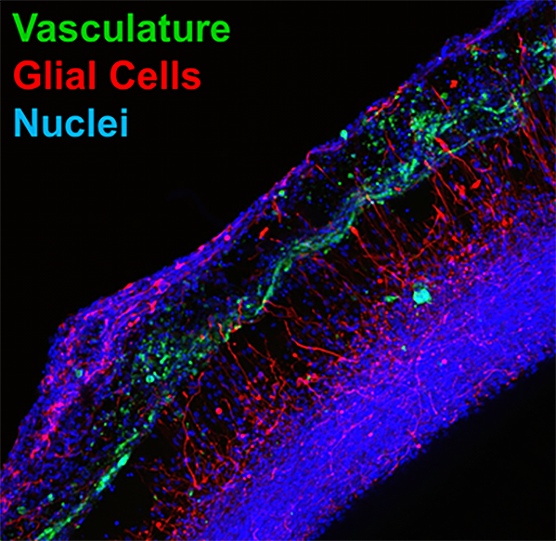 The above image is a close-up showing the nerves and blood vessels growing along with the brain glia cells.