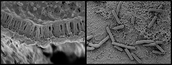 The photo on the left, taken with an electron microscope, reveals how these micro-guts can be modified to form layers that can accommodate various experiment protocols. It shows villi and other protein structures that match what would be seen in the human body. The image on the right depicts rod-shaped bacteria that researchers can add to the micro-gut system to study how bacteria living in the human gut affect health and disease.