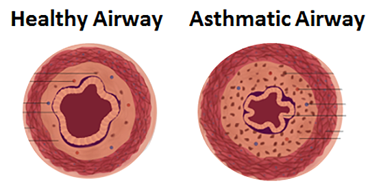 The image on the left shows a cross-section of an airway in a healthy lung; the image on the right shows an asthmatic airway, which has a narrowed opening because the muscles are squeezing too tightly.