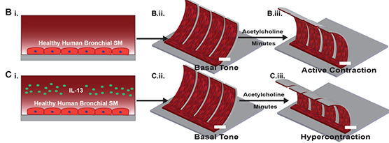 The top three images (Bi–iii) show healthy muscle cells in a chip based on an airway. When the researchers add the drug acetylcholine, the cells contract just as they would in a healthy person. The bottom three images (Ci–iii) show what happens to healthy muscle cells treated with a chemical (interleukin 13) that mimics asthma. When acetylcholine is added, the cells squeeze too much (hypercontraction), just as they would in a person with asthma.