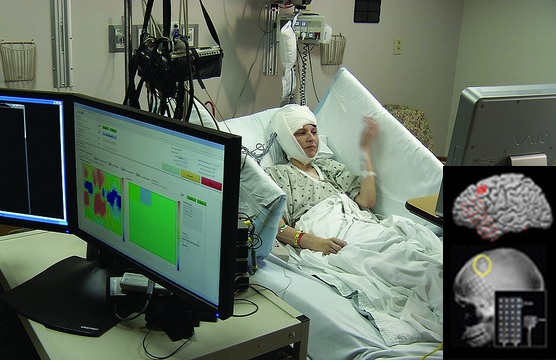 A team of NCATS-supported researchers at the University of Pittsburgh developed a micro-electrocorticography grid that may help paralyzed individuals move again. The device, which is implanted in the brain's movement-controlling motor cortex (see image inset), helps this study participant practice simple computer tasks using only her mind. A computer system interprets her brain's electrical impulses captured by the device then converts the signals into movement controls in virtual environments. (University of Pittsburgh School of Medicine Photo)