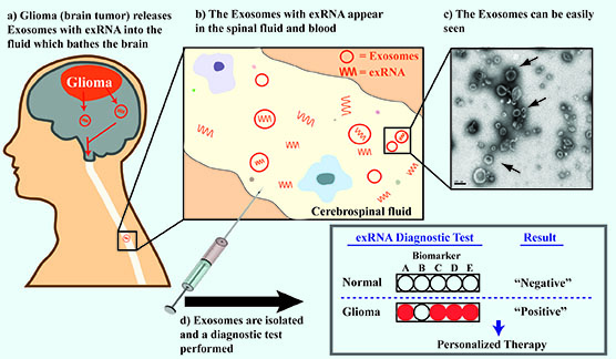 Graphic showing how exRNA biomarkers in plasma and cerebrospinal fluid aid diagnosis of brain tumors.