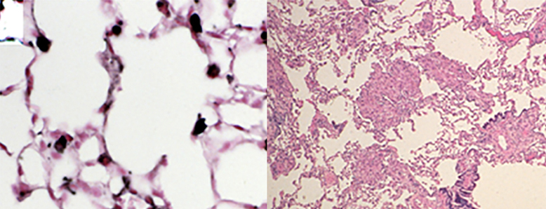 On the left is a normal lung and on the right is a lung affected by lymphangioleiomyomatosis.