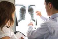 Doctors looking at an x-ray of the lungs