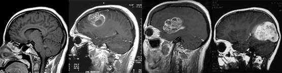 Four brain scans, one showing normal activity and three showing cases of glioblastoma