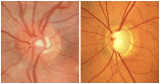 The image on the left shows the optic disc from a normal eye. The image on the right shows the disc from an eye in which the optic nerve has been damaged by glaucoma.