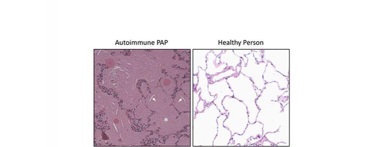 Autoimmune PAP shown next to healthy person