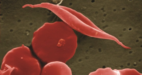 Sickle shaped red blood cell