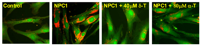 From left to right: a healthy control cell, an NPC cell, an NPC cell treated with delta-tocopherol and an NPC cell treated with alpha-tocopherol.
