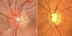 Optic disc from a normal eye (left) and optic disc from an eye in which the optic nerve has been damaged by glaucoma (right).