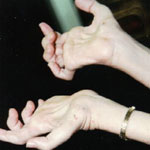 Hands of a CMT patient