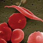 Image of sickle cell with other cells